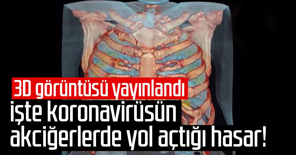 Koronavirüsün akciğerlerde yol açtığı hasar!