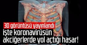 Koronavirüsün akciğerlerde yol açtığı...